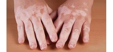 Viticolor, el gel para las pieles con Vitíligo